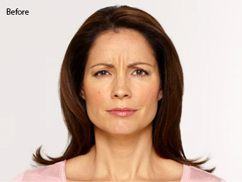 botox-before-after-latina-torrance-before