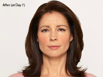 botox-before-after-latina-torrance-day7
