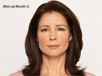 botox-before-after-latina-torrance-month3