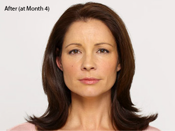 botox-before-after-latina-torrance-month4