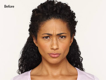 botox-before-and-after-african-american-south-bay-torrance