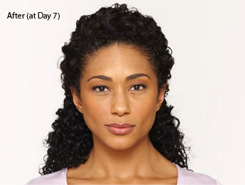 botox-before-and-after-african-american-torrance-day7