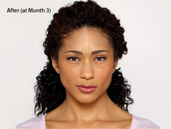 african-american-botox-before-and-after-best-torrance-botox