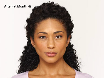 botox-before-and-after-african-american-torrance-month4