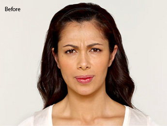 botox-before-and-after-latina-torrance-before