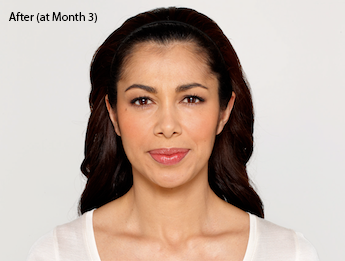 botox-before-and-after-latina-torrance-month3