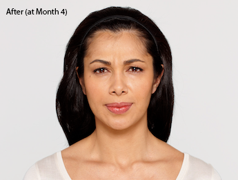 botox-before-and-after-latina-torrance-month4