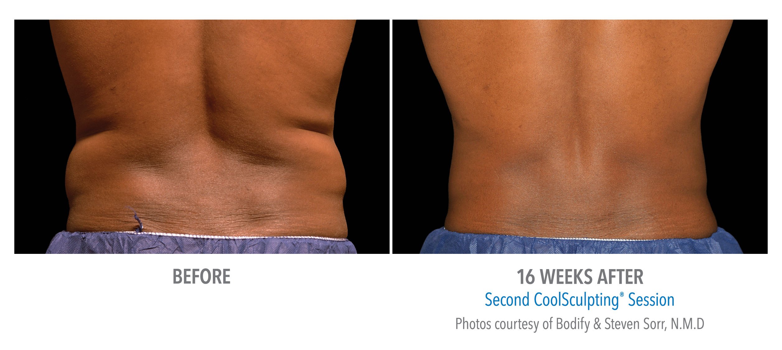 mens-coolsculpting-before-after-torrance-med-spa