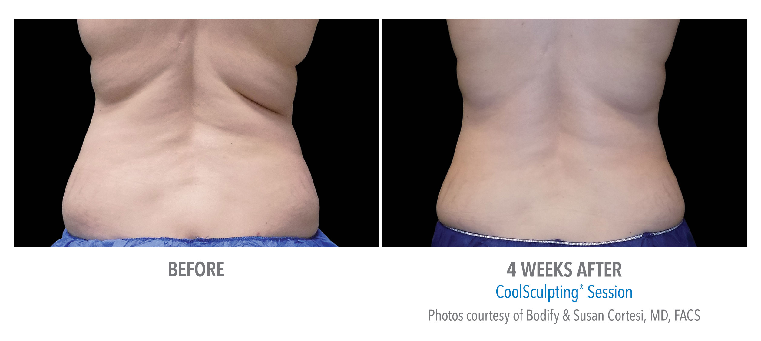 torrance-coolsculpting-back-flank-lower flank-coolsculpting2