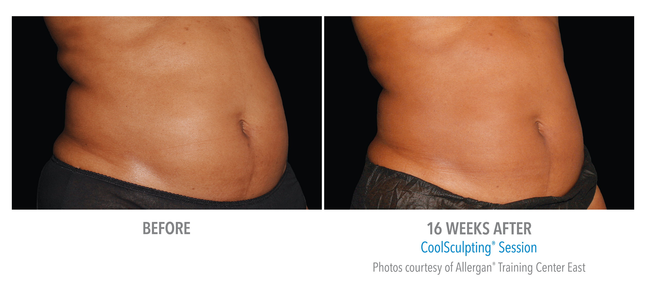 torrance-coolsculpting-back-flank-lower flank-coolsculpting3