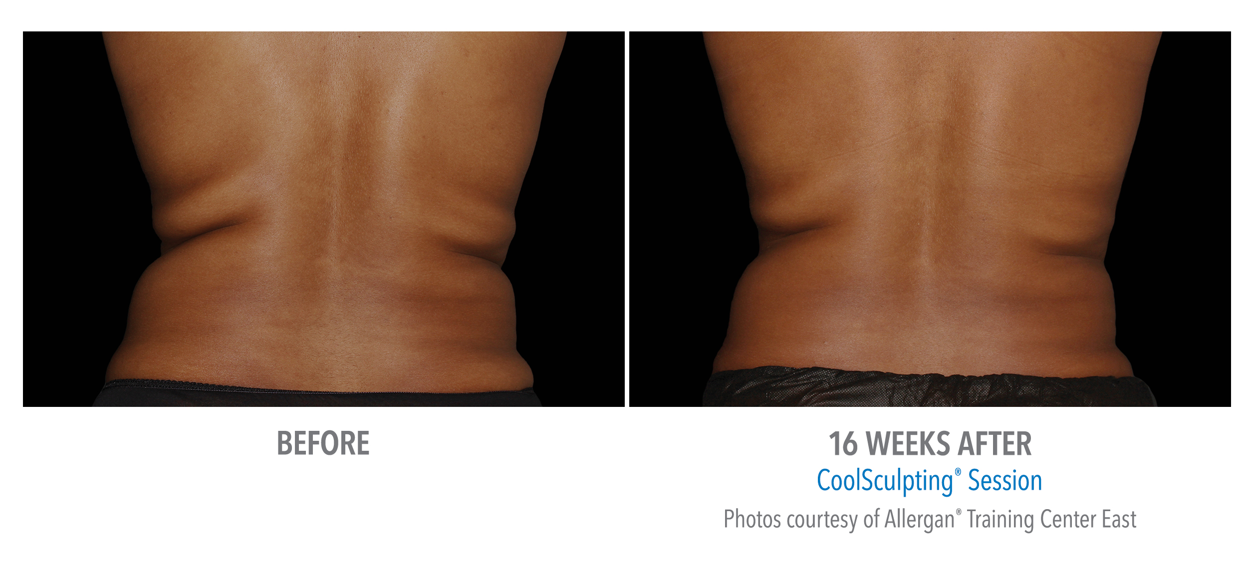 torrance-coolsculpting-back-flank-lower flank-coolsculpting5