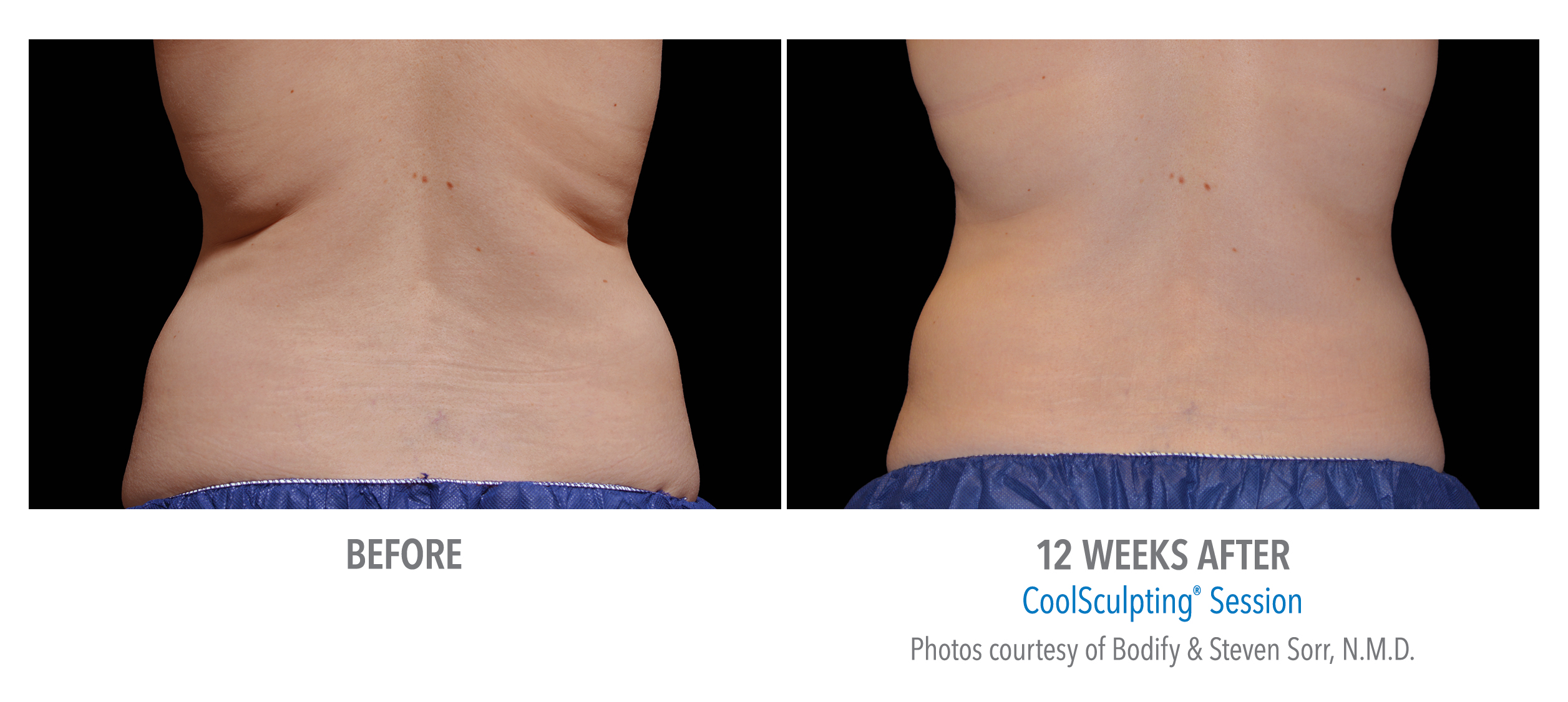 torrance-coolsculpting-back-flank-lower flank-coolsculpting6