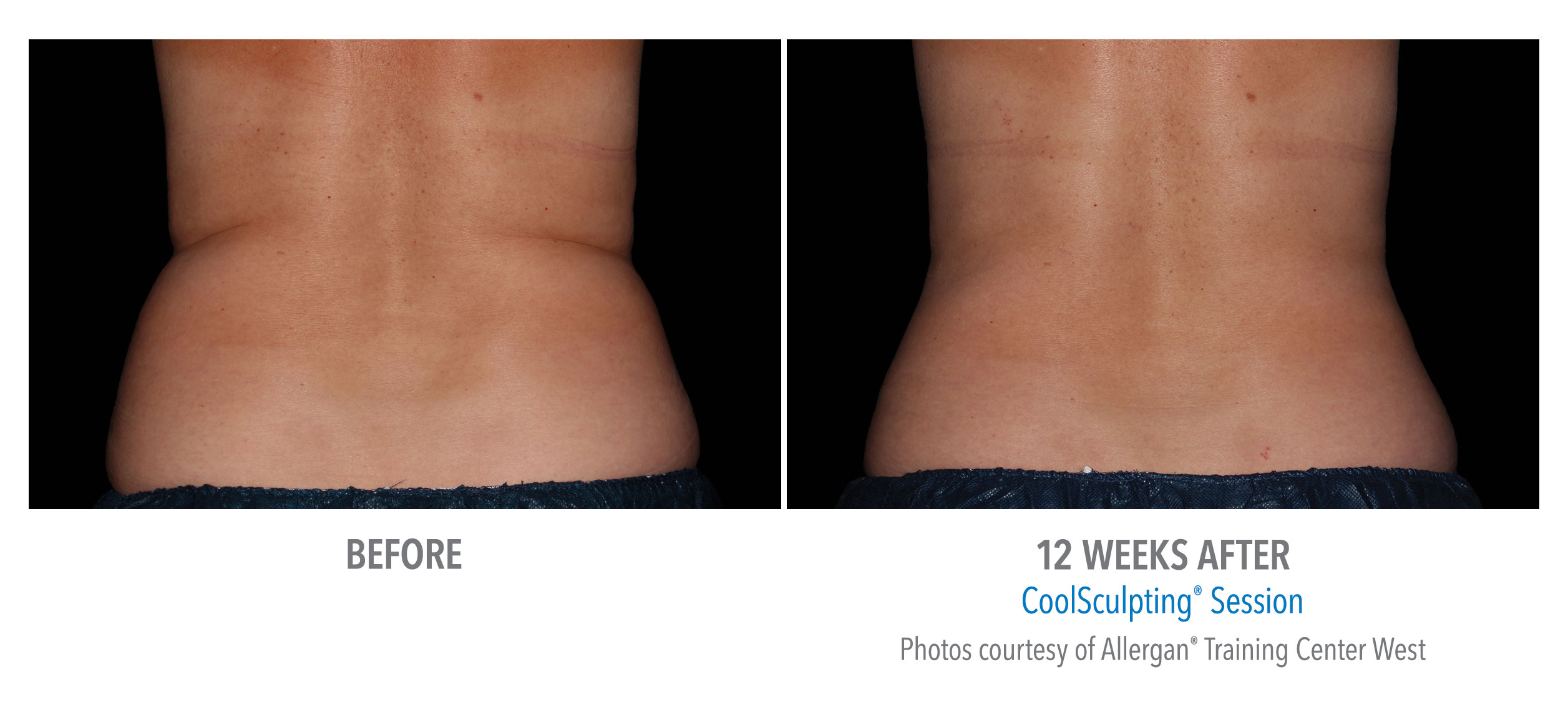 torrance-coolsculpting-back-flank-lower flank-coolsculpting