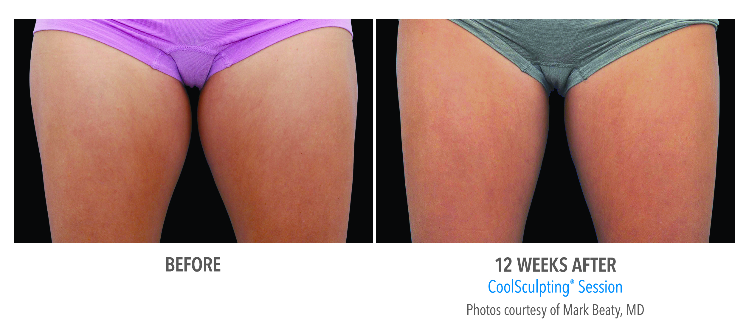 torrance-coolsculpting-thighs-inner-thigh-1