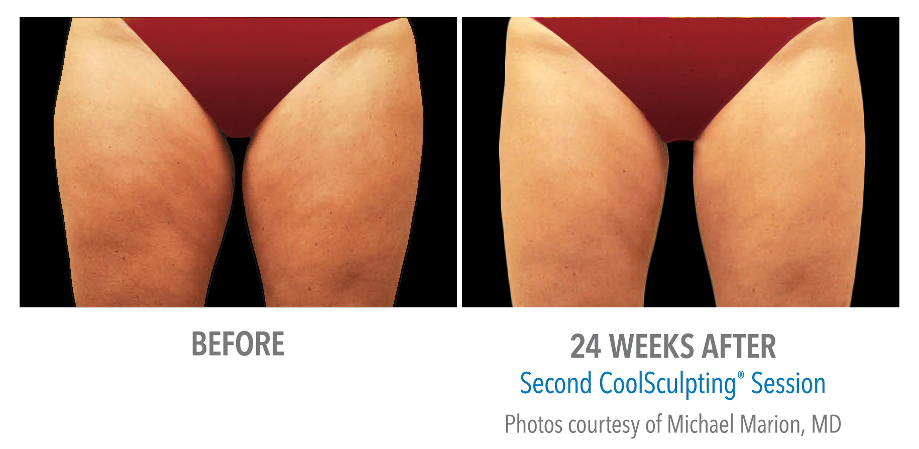 torrance-coolsculpting-thighs-inner-thigh-2