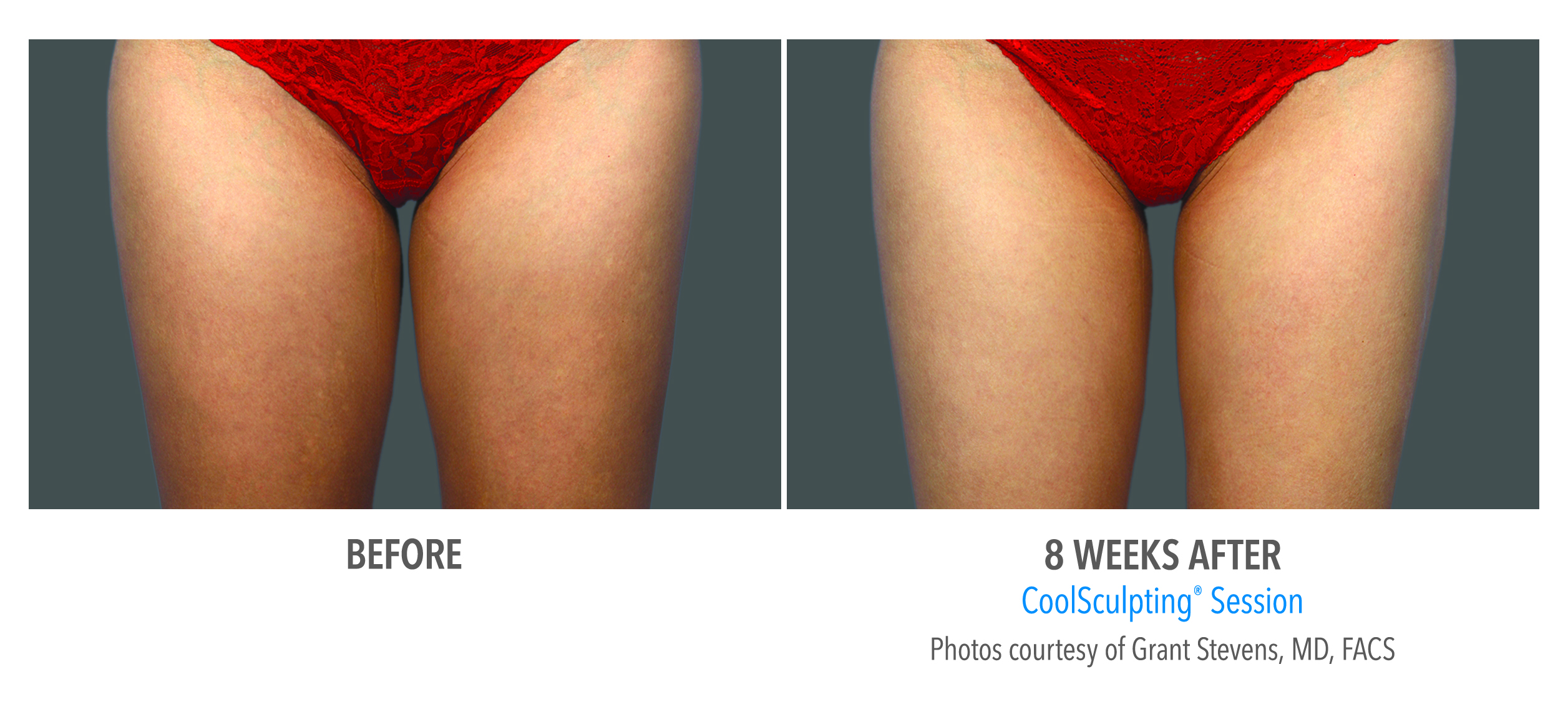 torrance-coolsculpting-thighs-inner-thigh-3