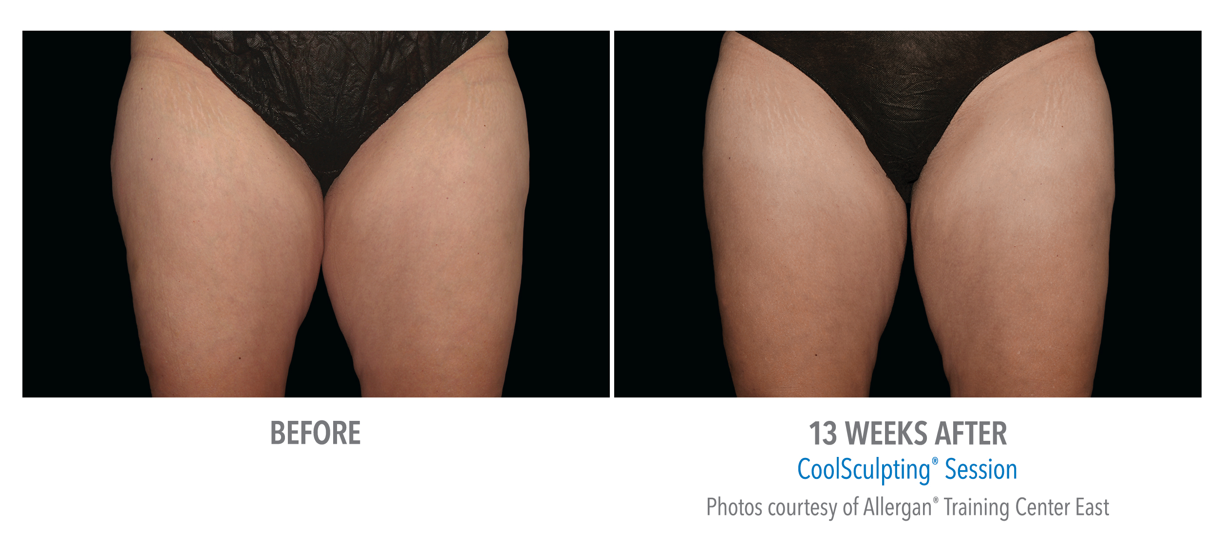 torrance-coolsculpting-thighs-inner-thigh-5