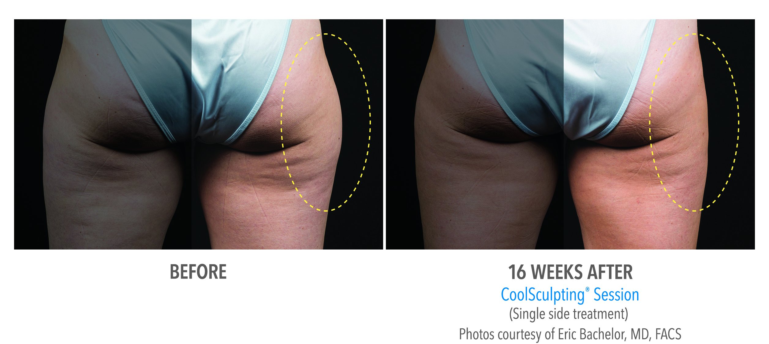 best coolsculpting near-torrance-coolsculpting-thighs-outer-thigh-1