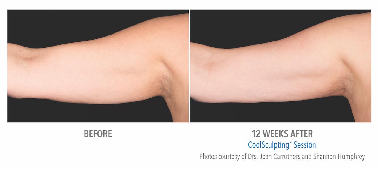 Coolsculpting Arm Fat near Torrance