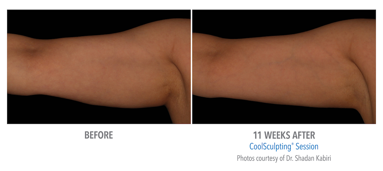 Coolsculpting arm Fat near me in Torrance