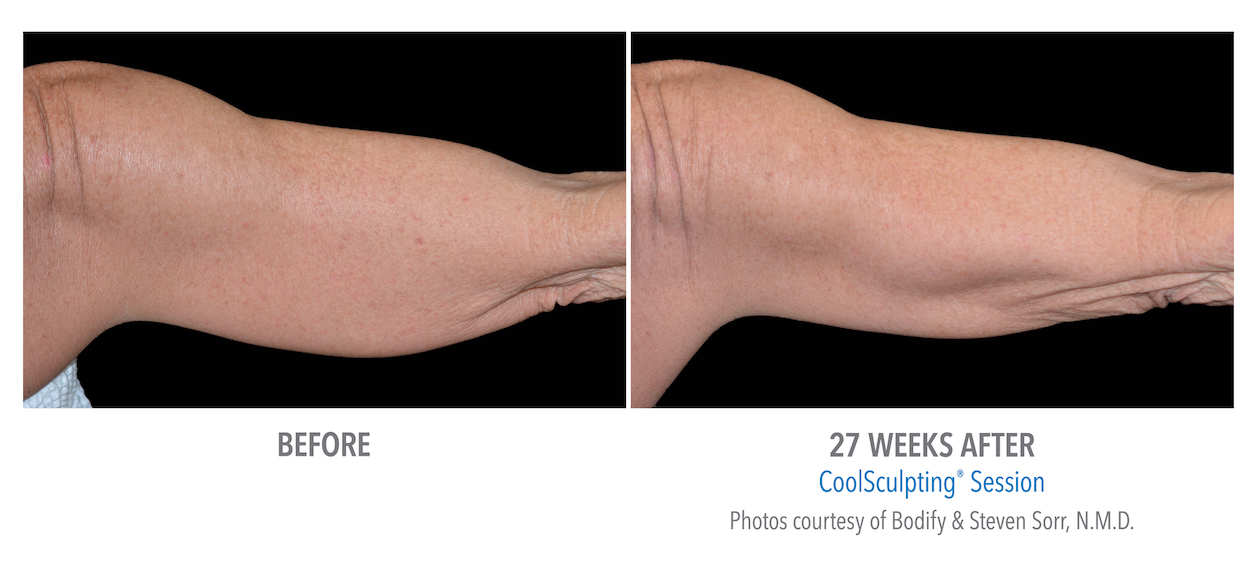Coolsculpting arm weight loss in Torrance