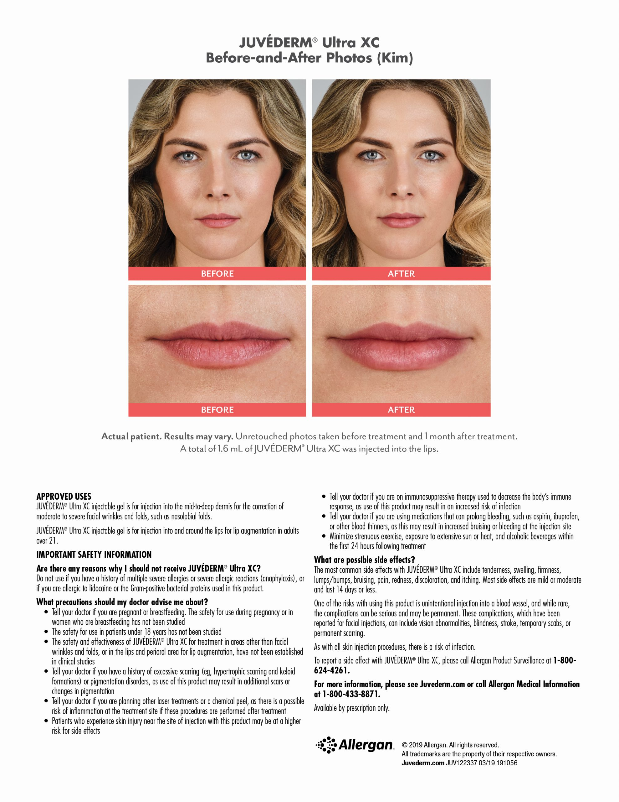 Juvederm Before & After-kim