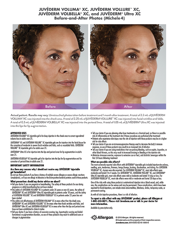 Torrance-Juvederm-near-me-before-after-Michele