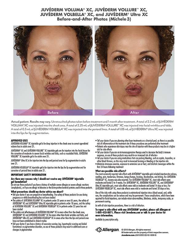 Juvederm-near-torrance-before-after-Michele