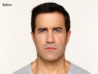 botox-before-after-caucasian-male-torrance-before