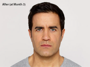 botox-before-after-caucasian-male-torrance-month3