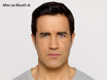 botox-before-after-caucasian-male-torrance-month4