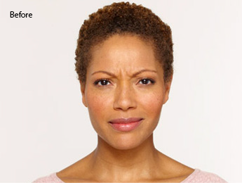 botox-before-and-after-african-american-south-bay-before