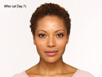 botox-before-and-after-african-american-south-bay-torrance-day7