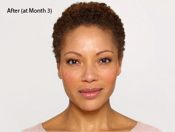 botox-before-and-after-african-american-south-bay-month3