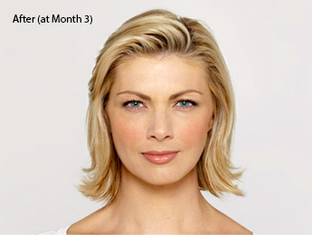 botox-before-and-after-caucasian-torrance-month3