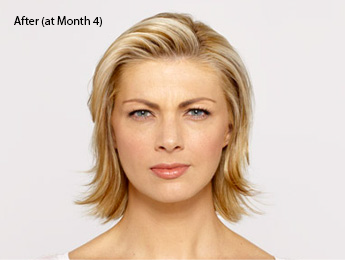 botox-before-and-after-caucasian-torrance-month4