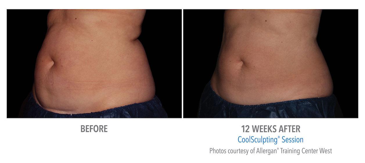 coolsculpting-stomach-abdomen-fat-loss-torrance