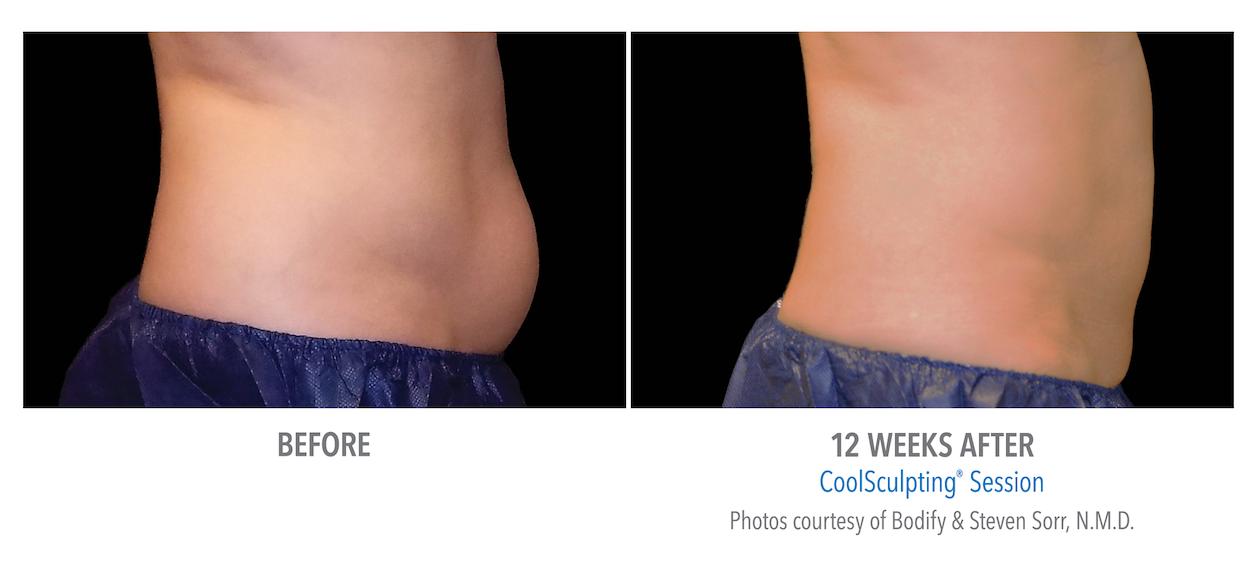 coolsculpting-stomach-fat-loss Torrance