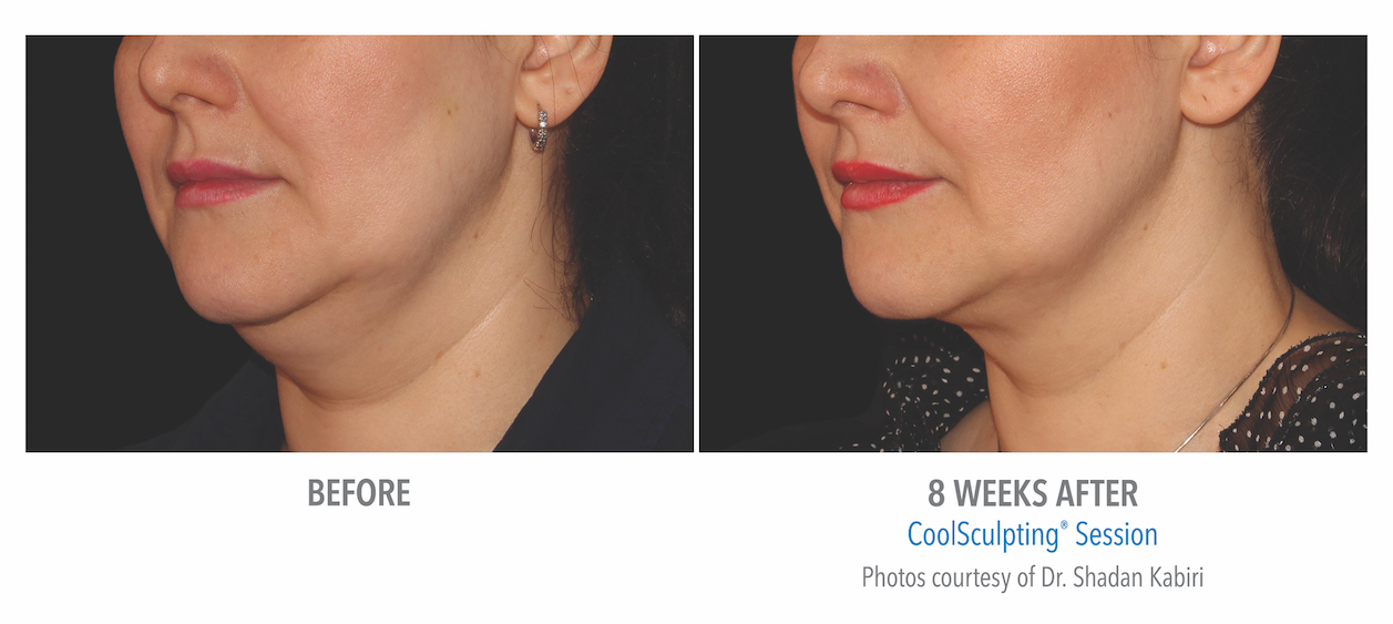 coolsculpting-under-chin-women-in-torrance-coolsculpting-before-and-after