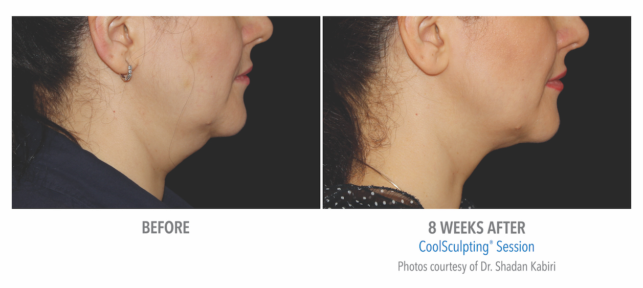 torrance-coolsculpting-under-chin-women-before-and-after