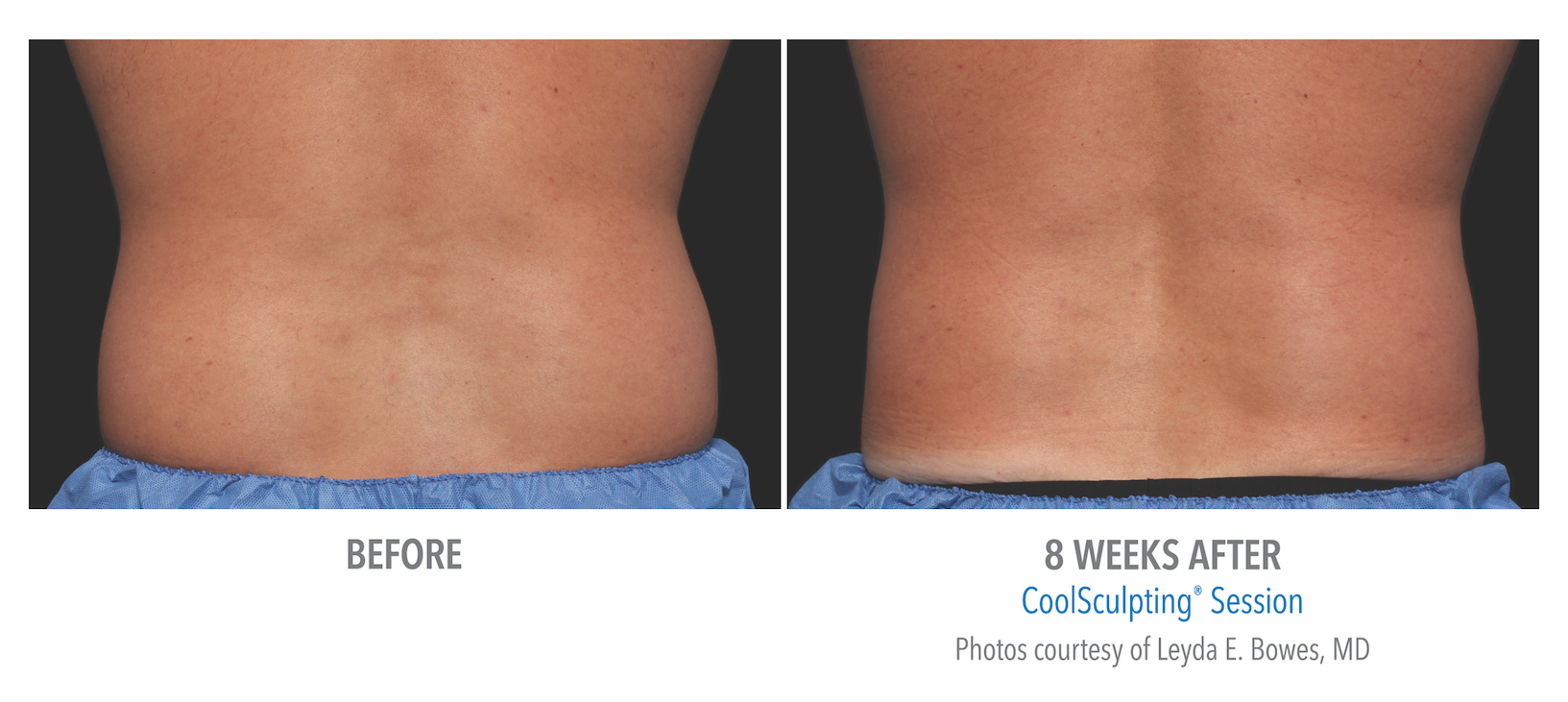 mens coolsculpting back flank in Torrance