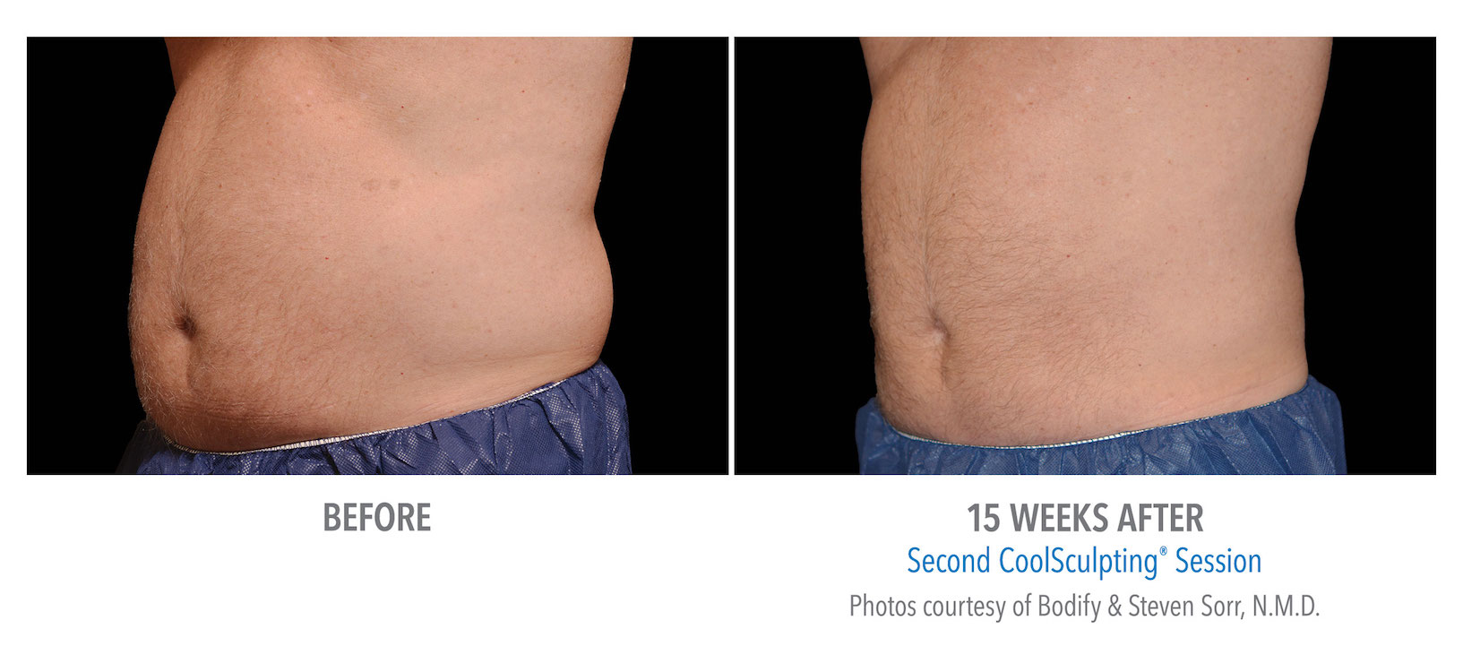 mens coolsculpting stomach near me in Torrance