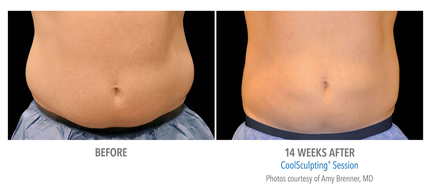 mens coolsculpting stomach flank torrance