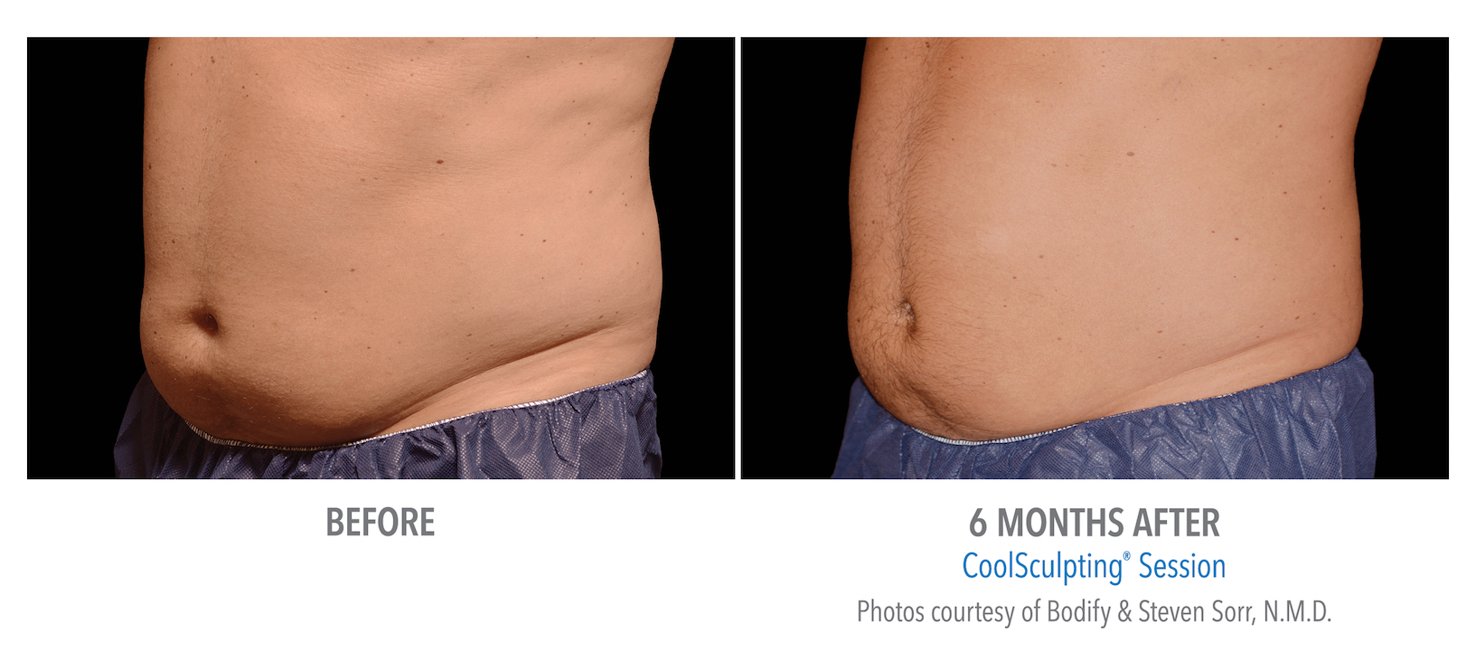 mens coolsculpting stomach in Torrance