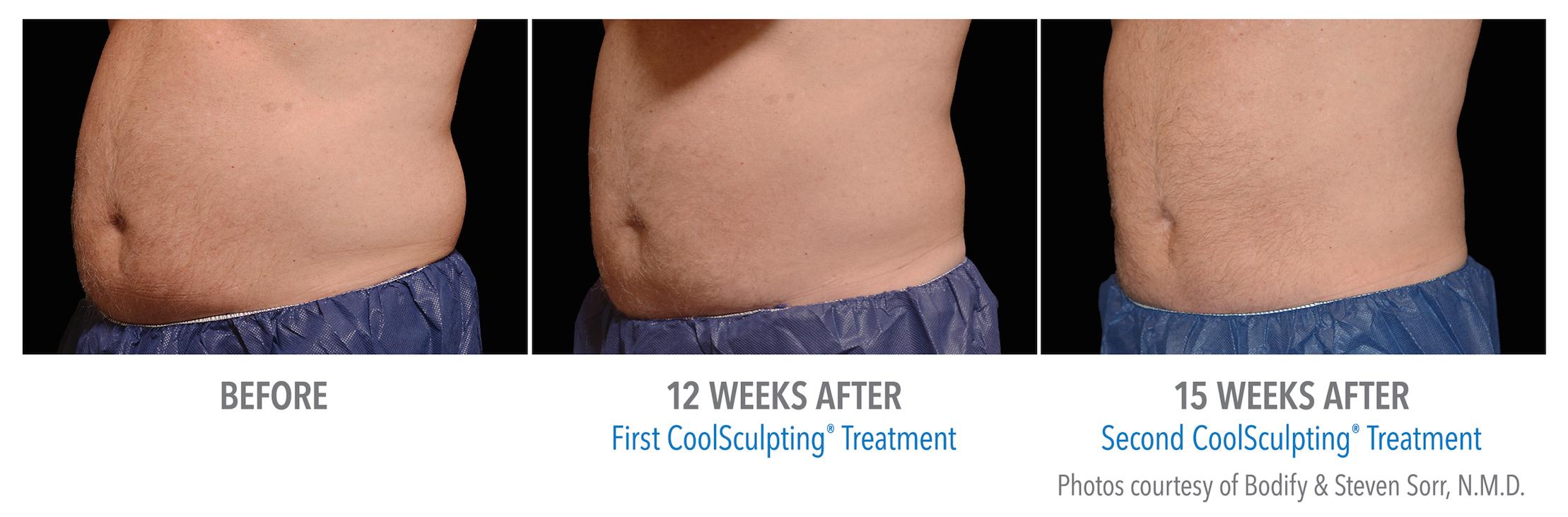 mens coolsculpting stomach near Torrance