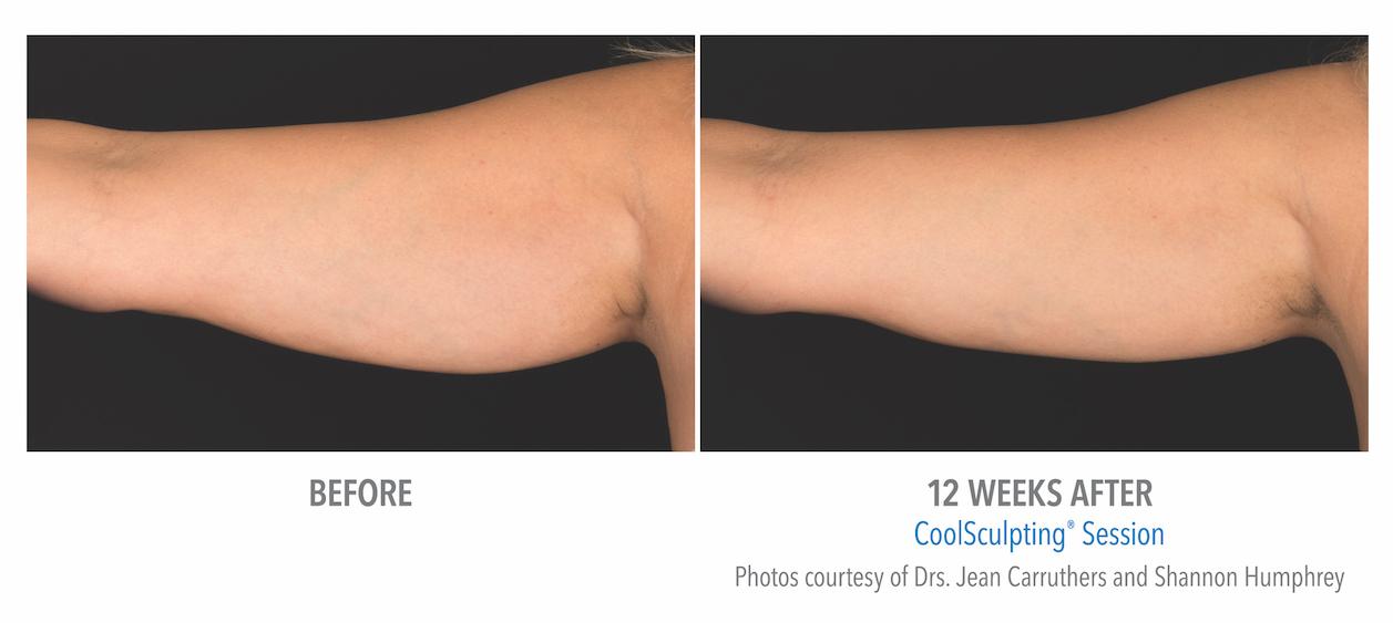 Torrance Coolsculpting Arm Fat