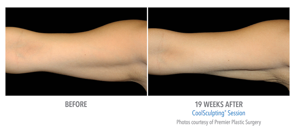 Torrance Coolsculpting arm weight loss