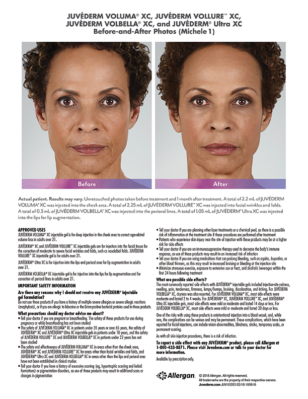 torrance-Juvederm-before-after-Michele