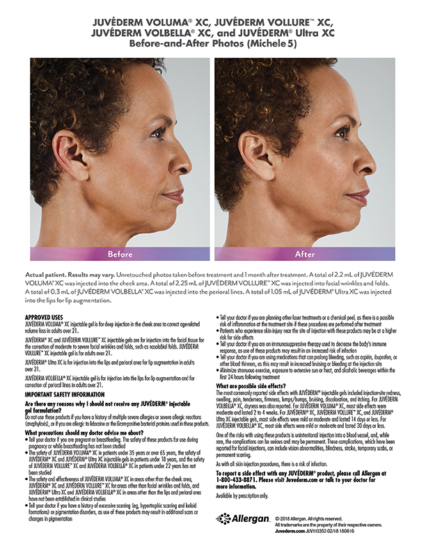 torrance-Juvederm-before-after-injectables-Michele