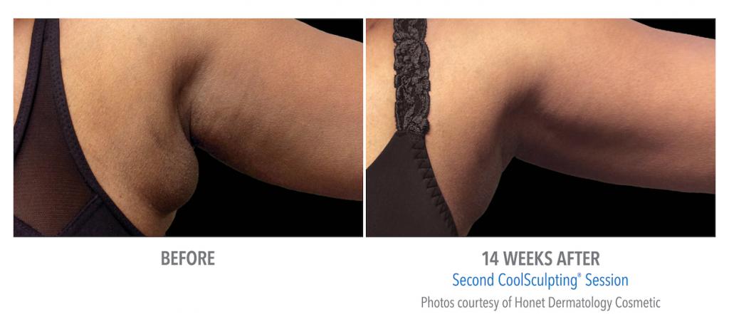 bra-fat-weight-loss-coolsculpting-whittier